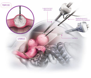 Acessa Procedure.